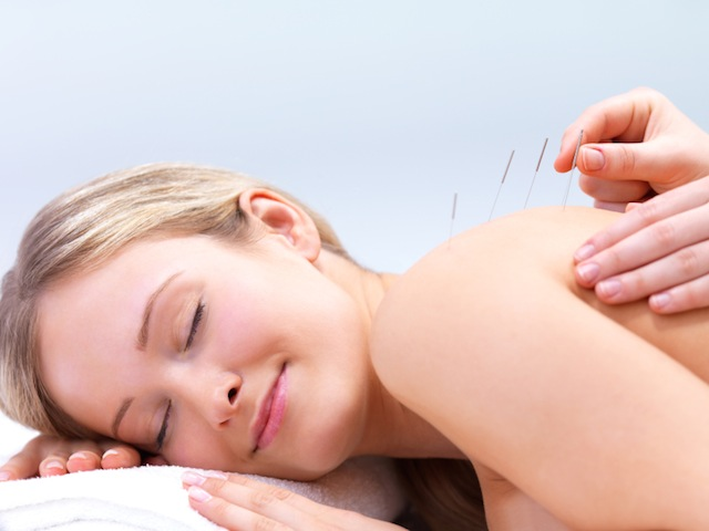 acupuncture How Acupuncture Really Feels and What it Can Do For You